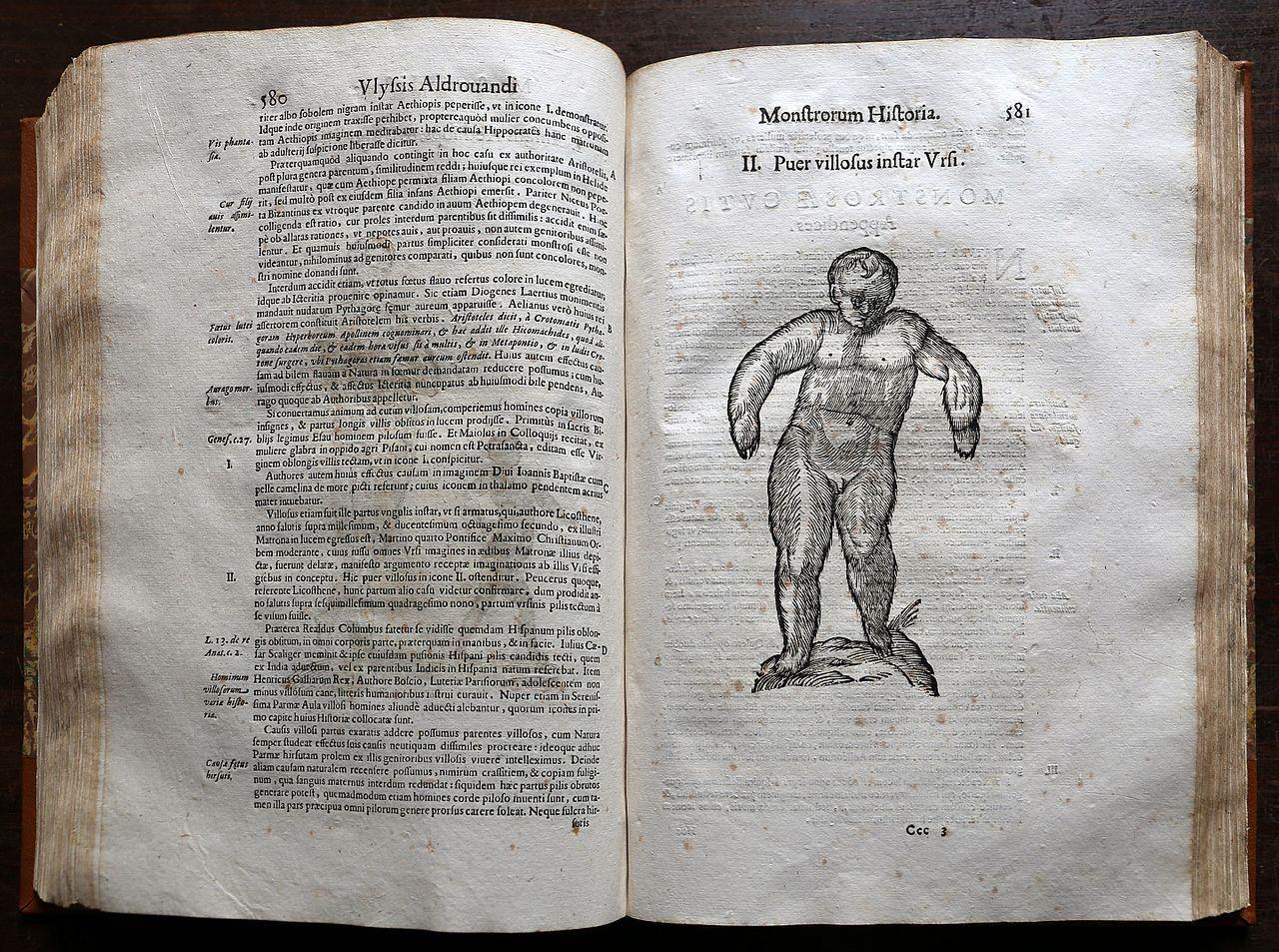1280px-Ulisse_aldrovandi,_monstrorum_historia,_per_nicola_tebaldini,_bologna_1642,_191_bambino_ipertricotico